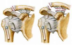 Как лечить если болит локтевой сустав