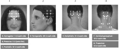 botox dose for migraines