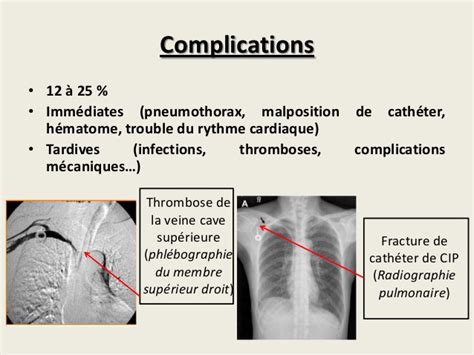 infection chambre implantable m 233 moire cip f kayal