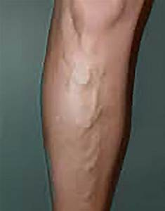 Varicose Veins are More Than Just a Cosmetic Concern - San ...