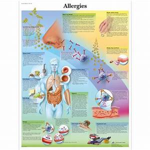 Anatomical Charts and Posters - Anatomy Charts - Allergies