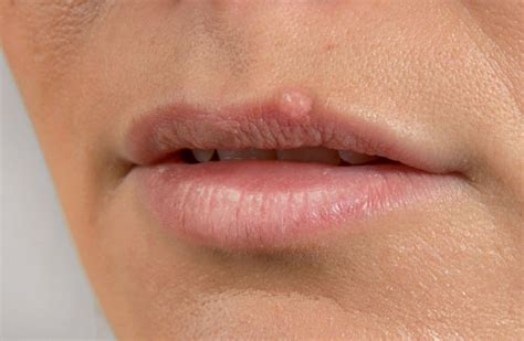 lip blisters  symptoms treatment diagnoses