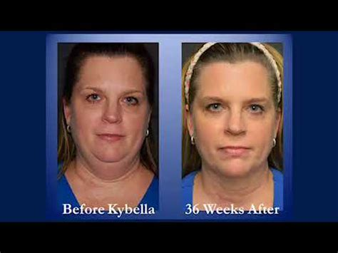 Kybella Before And After Pictures  Youtube