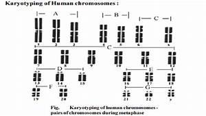 Human Genetics - Karyotyping