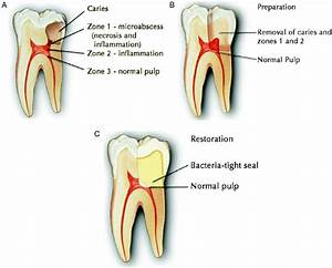 Root Canal Alternative Holistic Biologic Iaomt Dentist
