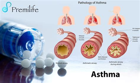 asthma premilife homeopathic remedies