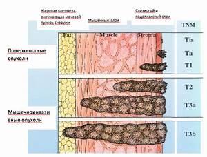 Лечение вируса папилломы человека в краснодаре