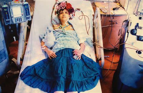 frida kahlo helped  burlesque dancer recover