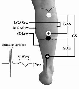 Positions Of Nmes Electrodes For Gas  Gs And Sol Stimulation  Fwemg