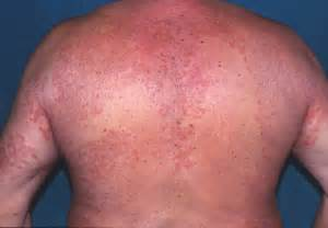 What Does Ringworm Look Like On Skin
