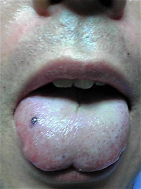 口内 血豆