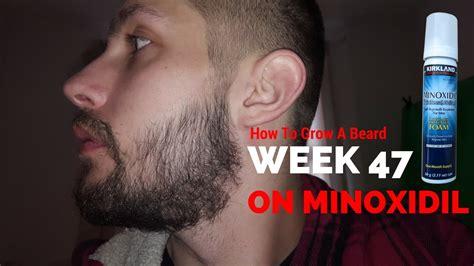 Kirkland minoxidil for beard - BeardStylesHQ