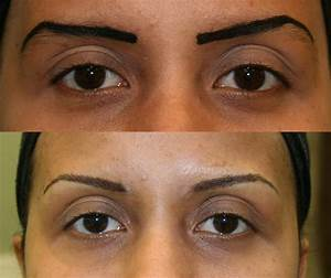 Semi Permanent Makeup Correction and Removal - I Heart ...