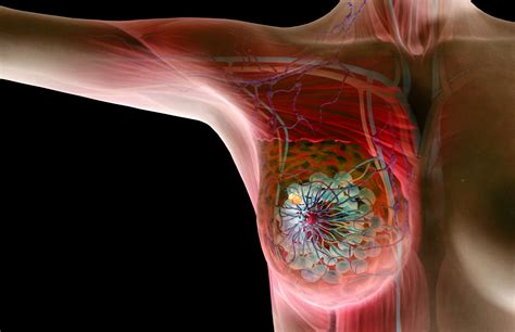 The Basics On Benign And Cancerous Breast Lumps
