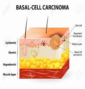 Basal Cell Carcinoma  Source  Amp Ausumed Com