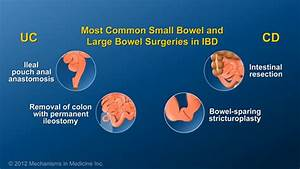 Small Bowel And Large Bowel Surgery For Ibd
