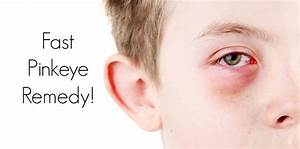 Pinkeye Fast Easy And Best Home Remedy Healthy Home