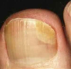 Лоцерил против грибка на ногтях ног