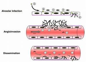 File Aspergillus Fumigatus Invasive Disease Mechanism