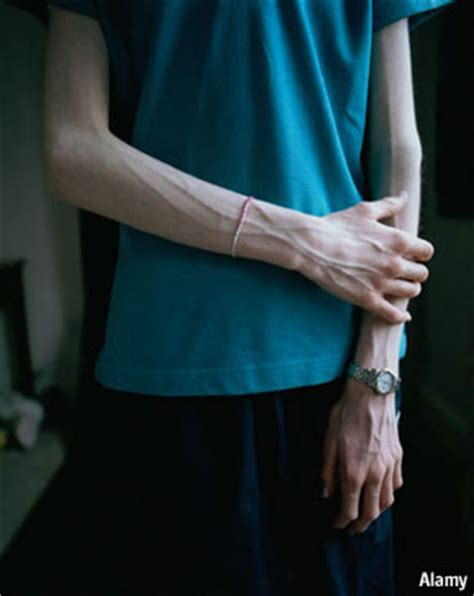 thin cases anorexia