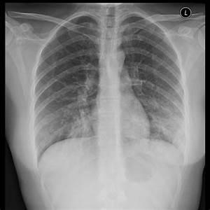 Walking Pneumonia Symptoms  Treatment  Recovery Time