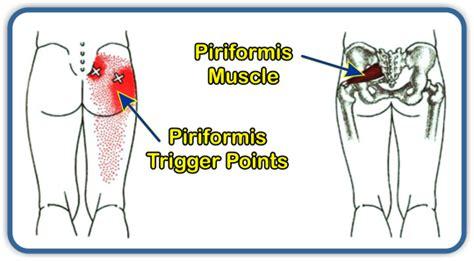 piriformis syndrome    paincoon rapids