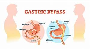 Gastric Bypass U2019 Successful Impact On Obese Young Adults