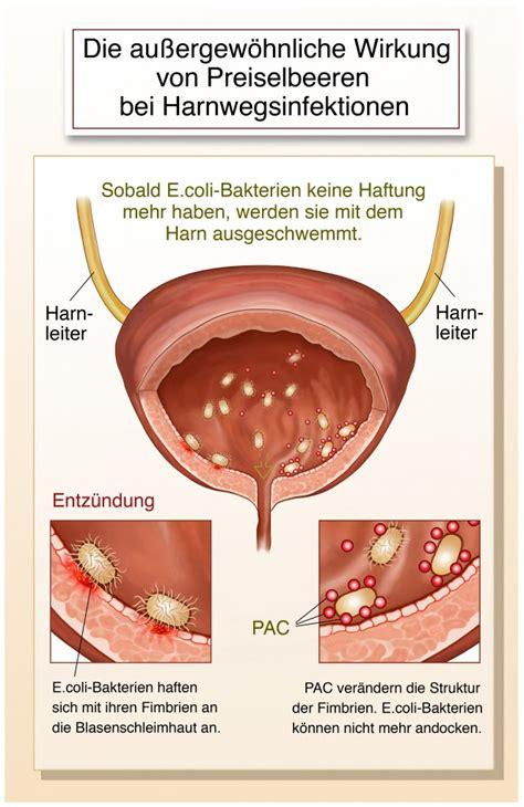harnröhre verletzt blut
