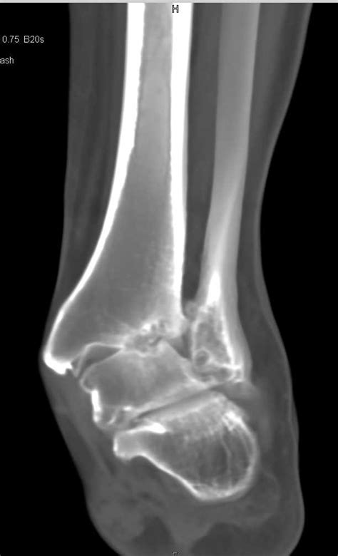 Degenerative Change in the Ankle Joint - Musculoskeletal