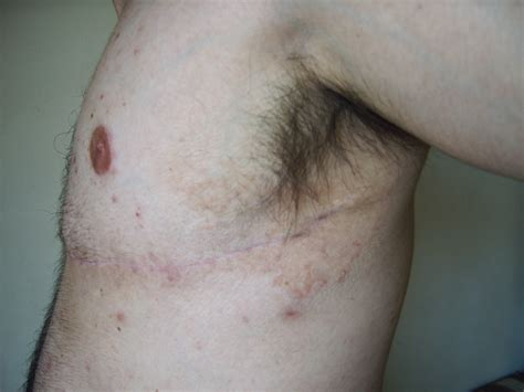 Yeast Infection Under Arms Yeast Infection Tips