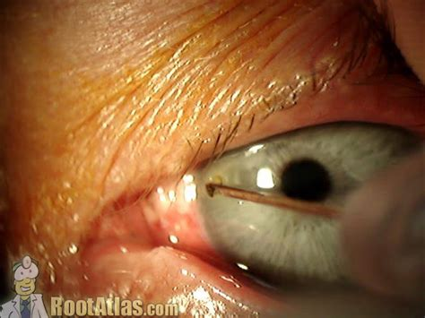 body metal foreign cornea eye removal removing rust needle corneal eyes fb vuiltje removed het oog historia cause