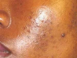 Video Bouton Noir : comment enlever des t ches noir sur le visage youtube ~ Medecine-chirurgie-esthetiques.com Avis de Voitures