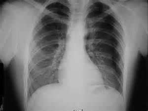 Trauma.org - Pneumothorax Pneumothorax
