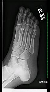 Archive Of Unremarkable Radiological Studies  Foot X