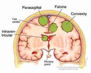 Meningioma; Meningiomas, Multiple; Meningiomatosis; Benign ...