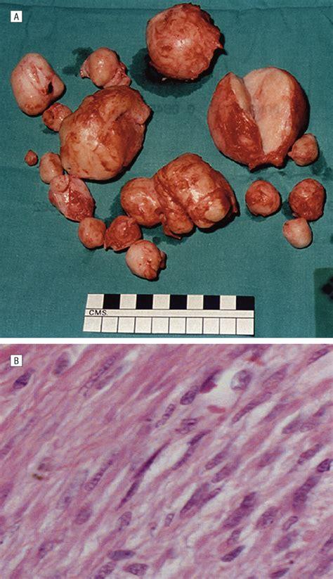 clinical features  multiple cutaneous  uterine