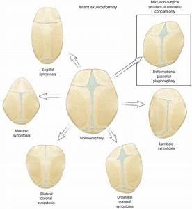 Endoscopic Craniosynostosis Repair