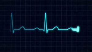 An Animated Heart Monitor EKG Line. With Sound And Alpha ...