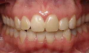 Removing, Teeth, Stains