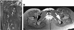 Mri Views Of A Partial Insertional Tear With A Sickle Sign