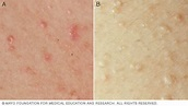 Heat rash - Symptoms and causes - Mayo Clinic