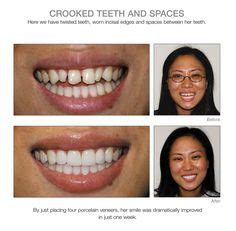 full review  invisalign including
