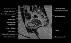 MRI Female Pelvis Anatomy Uterus