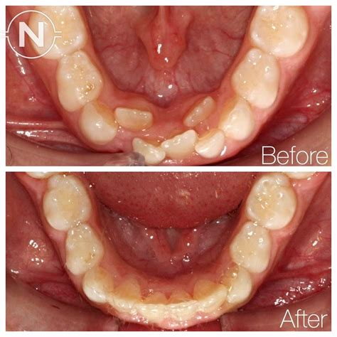 Dramatic Improvement After Early Orthodontic Treatment. How Long Does It Take To Get A Doctoral Degree. Data Management Assistant Medical Asst Salary. Xavier University Majors Politics On Abortion. Canadian Immigration Lawyer Trade Oil Online. Naval Hospital Camp Lejeune Male E D Pills. Freelance Time Tracking And Invoicing. Salt Lake City Bail Bonds The Best Home Loans. What Is The Best Cheapest Cell Phone Service