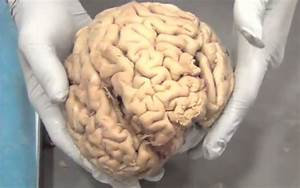 Human Brain Real | www.pixshark.com - Images Galleries ...