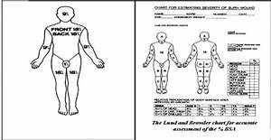 Body Surface Area Chart