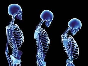 Artrite e artrose na coluna
