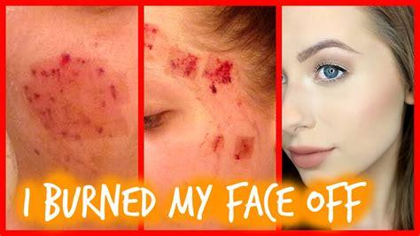 laser skin resurfacing recovery
