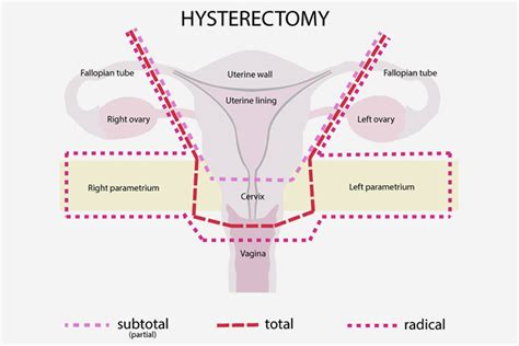 Can You Get Pregnant After Hysterectomy?