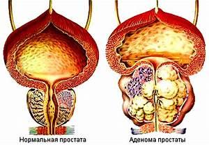 Аденома предстательной железы у мужчин симптомы лечение
